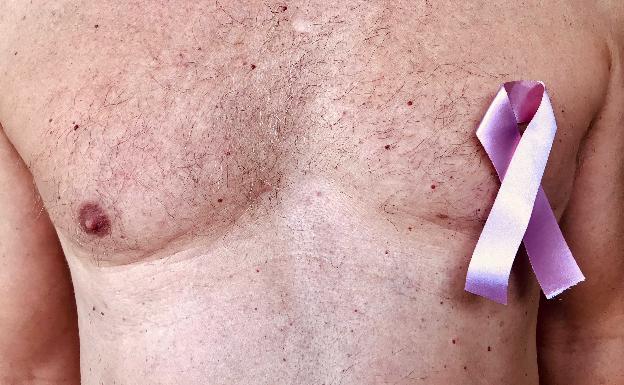 12 síntomas del cáncer de próstata nunca ignoran
